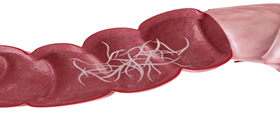parassiti-intestinali